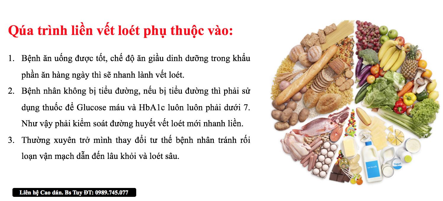 dieu-tri-loet da-do-suy-van-tinh-mach
