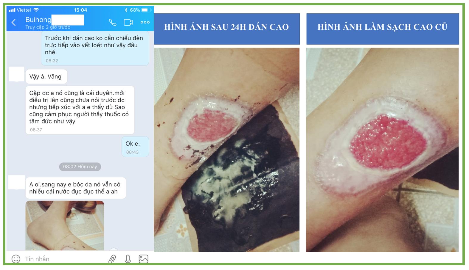Điều trị bỏng không cần vá da
