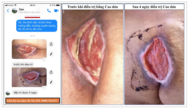 Điều trị loét da