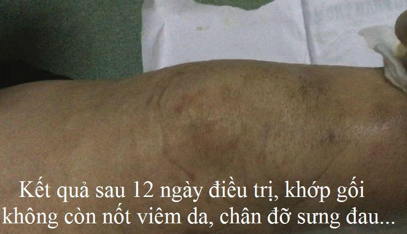 Điều trị viêm da