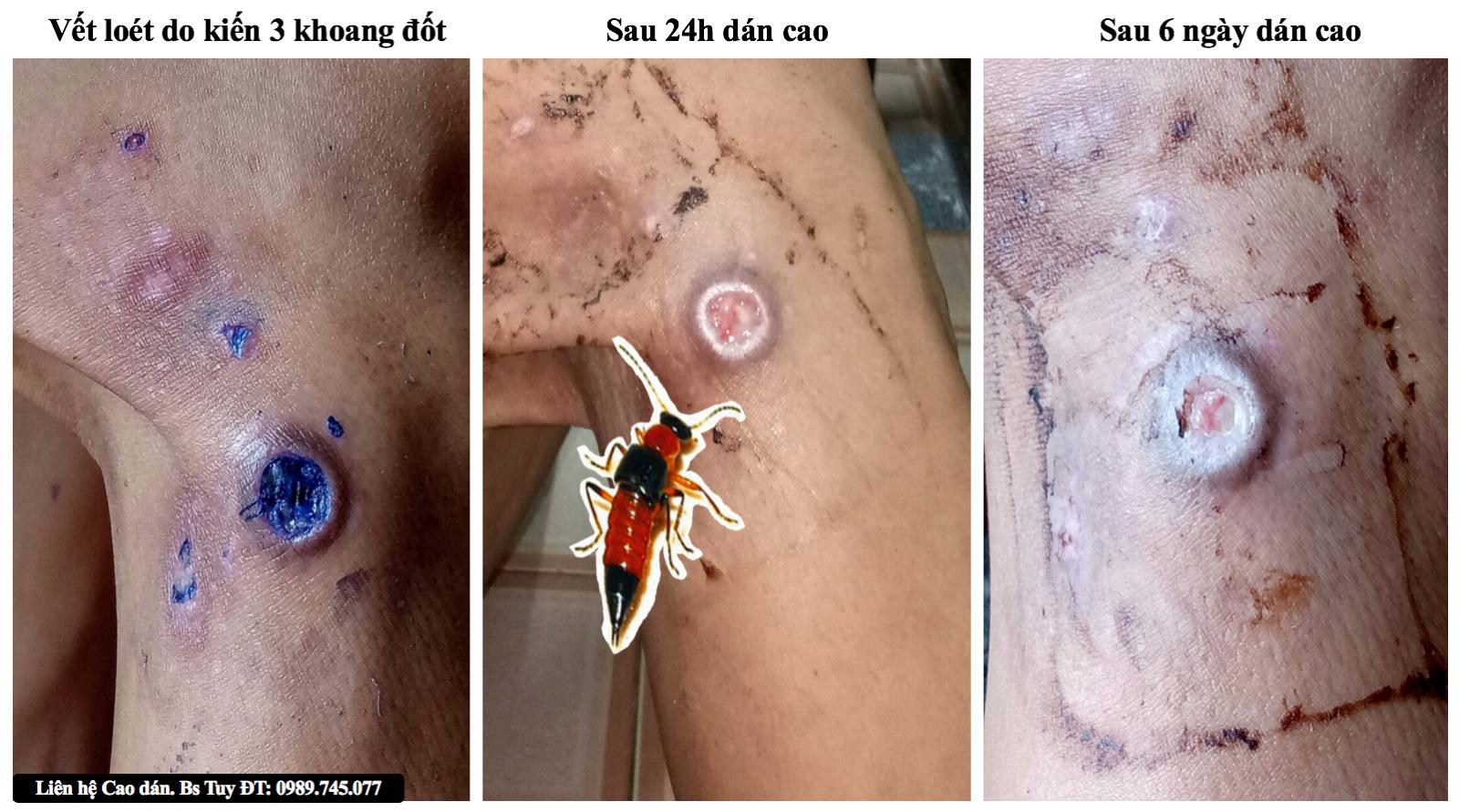 Điều trị viêm da do kiến ba khoang đốt